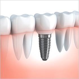 dental-implant-small2