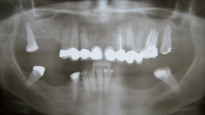Before: X-ray