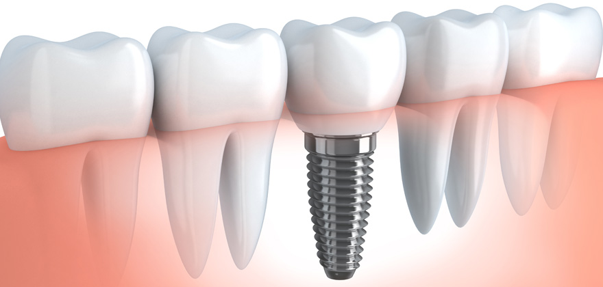 dental-implant-large2