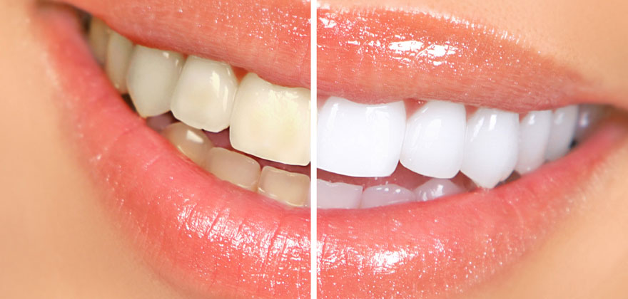 teeth-whitening-large