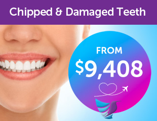 chipped-damaged-teeth-thumb