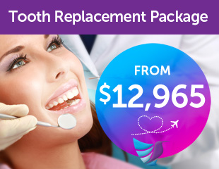 dental-tooth-replacement-thumb